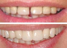 Smile design, estetica del sorriso, dentisti saluzzo